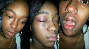 Sharkeisha-Fight-victim-miss-jia-500x277